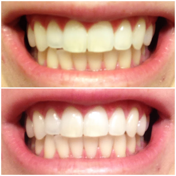 Natural Teeth Whitening Oil Pulling